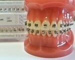 Брекет-система American Orthodontics